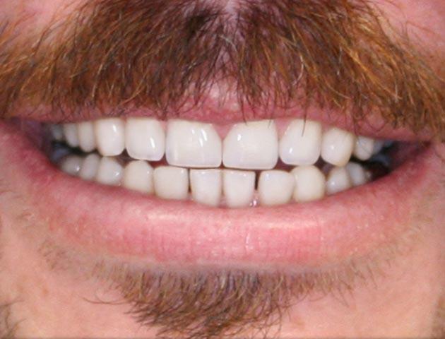 lower teeth veneers dr tom stelmach and neil hadaegh dentist dds 304 reviews